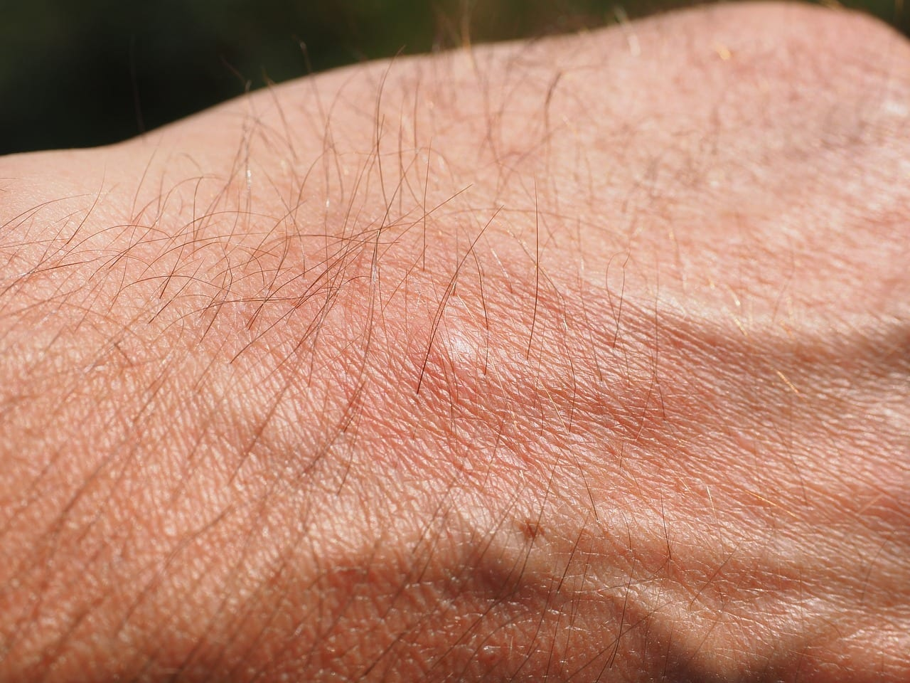 getting rid of mosquito bites